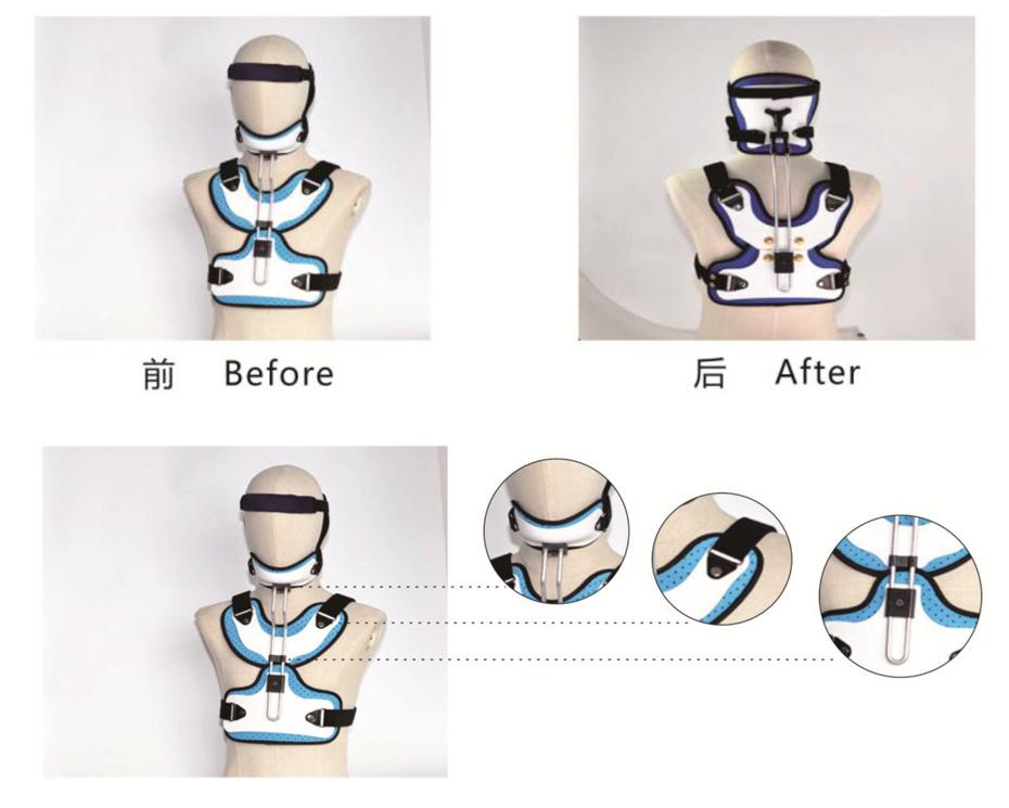 脊柱矫形器头颈胸A#-01