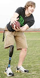 谈谈假肢接受腔的全接触与残端承重04