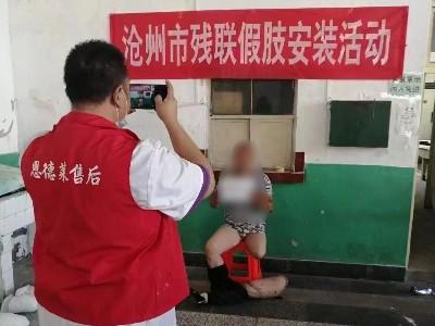 「恩德莱天津爱心店」来到河北省沧州地区为肢残朋友现场取型